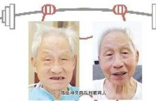 老年人做种植牙需要具备什幺条件 老年人种植牙